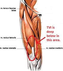 Researchers in Switzerland identify a new muscle called the tensor of vastus intermedius or TVI